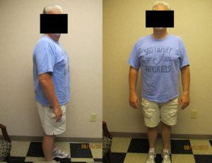 after hcg weight loss program rock hill