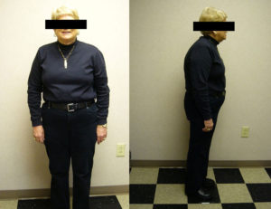 after weight loss plan in rock hill