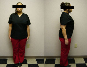 benefits of hcg injections for weight loss