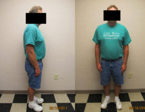after hcg and weight loss program charlotte