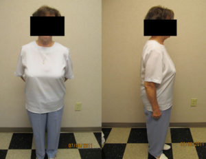 after weight loss program in rock hill