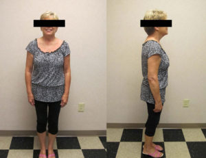 after hcg and diet weight loss