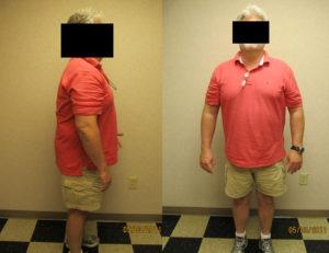 before hcg weight loss program rock hill