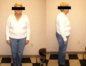 before weight loss plan in rock hill