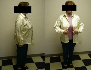 before weight loss program in rock hill
