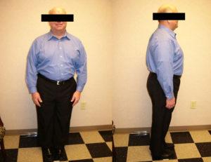 before best weight loss program
