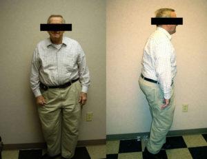 before weight loss program