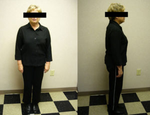 before hcg and diet weight loss