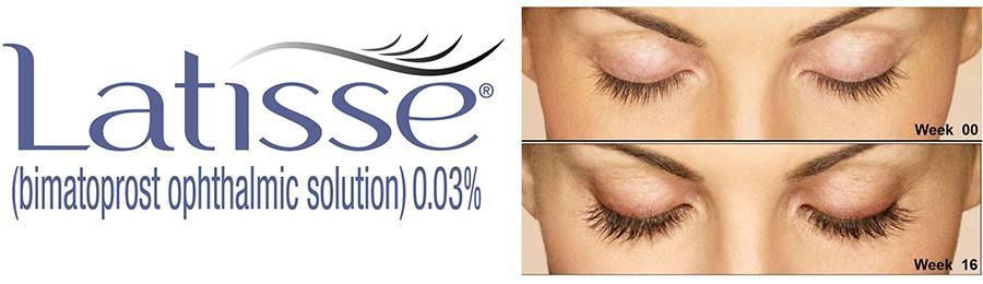 latisse eyelash treatment in rock hill