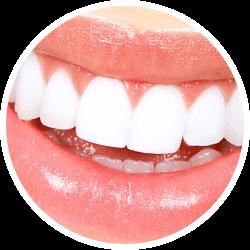 Beaming White Teeth Whitening
