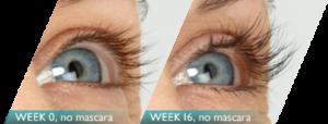 latisse eyelash growth
