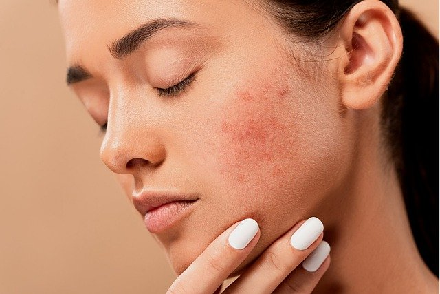 What Causes Skin Problems During The Pandemic & How To Avoid Them