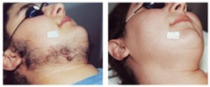 Before and after of laser hair removal on the face