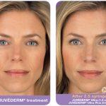 Is Juvéderm Better Than Botox For Wrinkles?