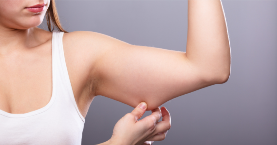 How To Lose Arm Fat Without Exercise