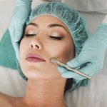 How Microneedling Can Transform Your Skin