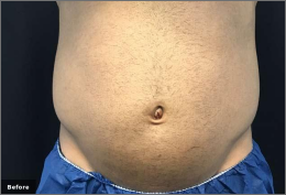 before and after trusculpt flex treatments in rock hill sc