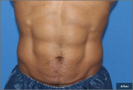before and after trusculpt in rock hill and charlotte