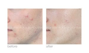 text: acne scars before and after pca skin care in rock hill