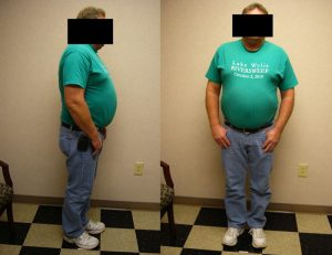 before hcg and weight loss program charlotte