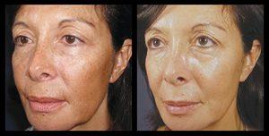 vi dermatology skin treatment in rock hill