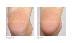 dry skin before and after pca skin care in rock hill