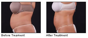 exilis skin tightening in rock hill before and after photo