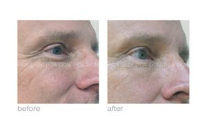 wrinkles before and after pca skin care in rock hill