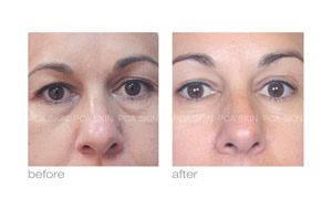 skin around eyes before and after pca skin care in rock hill
