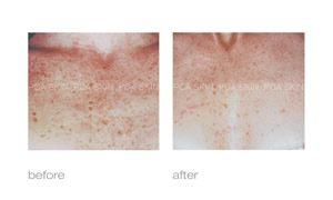 pca skin care treating hyperpigmentation