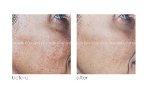pca in rock hill treating hyperpigmentation