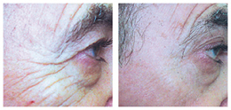 before and after laser therapy rock hill sc