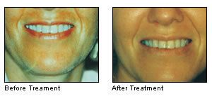 before and after facial microdermabrasion