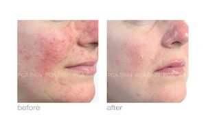 pca in rock hill treating rosacea