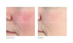pca skin care treatment of rosacea