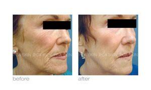 pca skin care reduce wrinkles